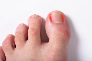 Ingrown toe nail and nail surgery Nowra